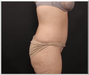 אחרי ניתוח מתיחת בטן פרופיל