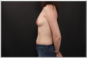 לפני ניתוח הגדלת חזה פרופיל