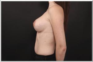 אחרי ניתוח הגדלת חזה פרופיל