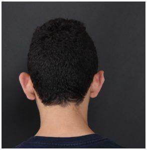 לפני הצמדת אוזניים לבני נוער