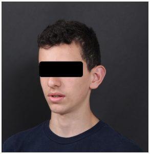 הצמדת אוזניים לבני נוער