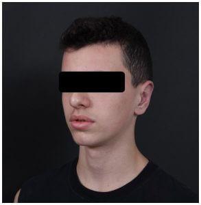 הצמדת אוזניים לבנים