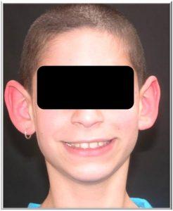 הצמדת אוזניים לילדים
