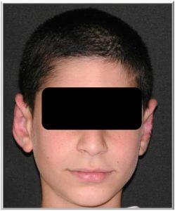 ניתוח הצמדת אוזניים לילדים