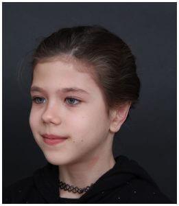 אחרי ניתוח הצמדת אוזניים לילדים