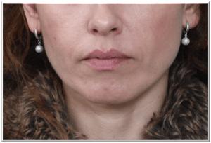 הזרקות חומצה היאלורונית לשפתיים