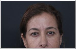 העלמת קמטי הבעה באמצעות הזרקות בוטוקס