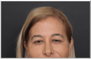 טיפול בוטוקס העלמת קמטי הבעה