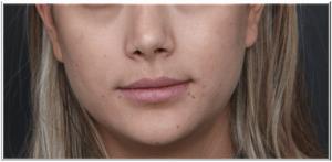 לפני מילוי שפתיים חומצה היאלורונית
