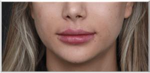 מילוי שפתיים חומצה היאלורונית