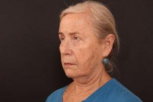 לפני ניתוח פנים